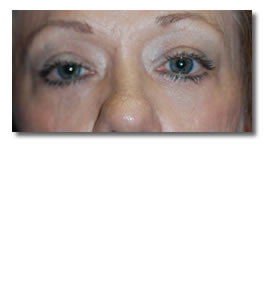 After-Lower Eyelid 02